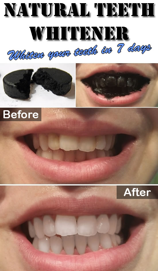 Natural Teeth Whitener with Activated Charcoal - Beauty ...