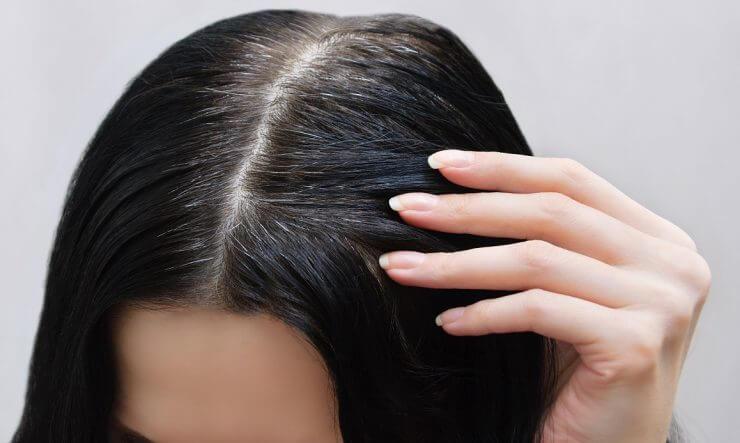 頭皮癢到不行?別再用錯誤方法!簡單7招。搞懂頭皮癢原因跟舒緩方法! | 美力升級 Beauty Upgrade