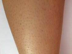 足の毛穴 ぶつぶつ