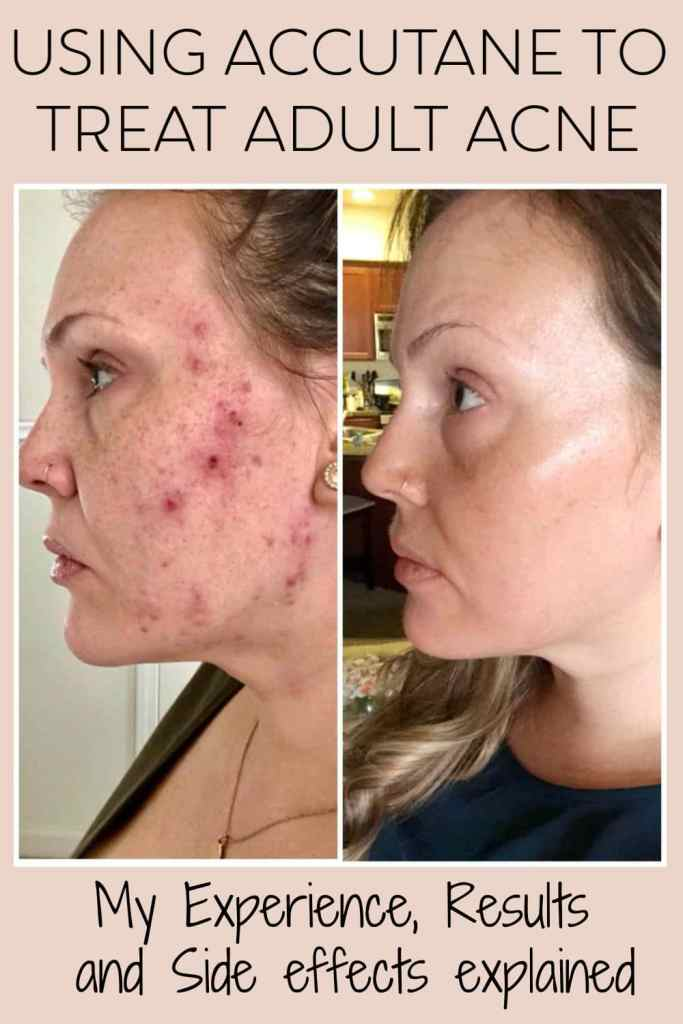 Accutane For Adult Acne My Experience Beauty And The Bench Press