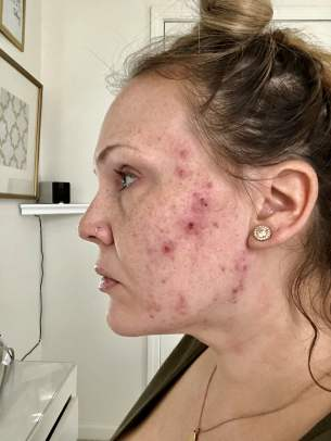 accutane for adult acne
