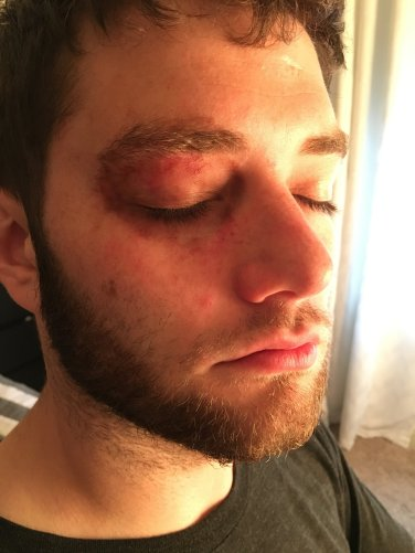 Black eye effect