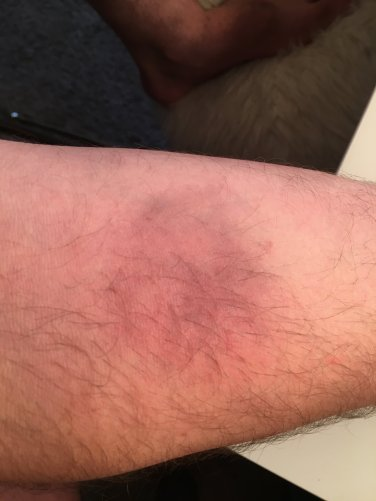 fresh bruise effect