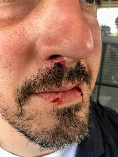 Peeling skin effect on lip