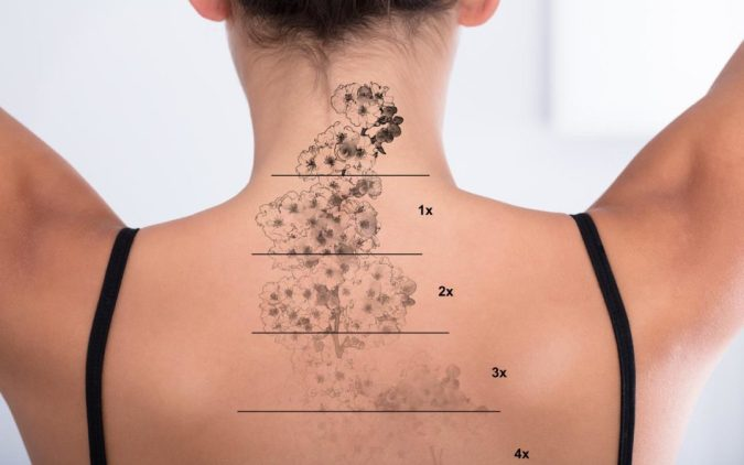 Tattoo-Removal-stages