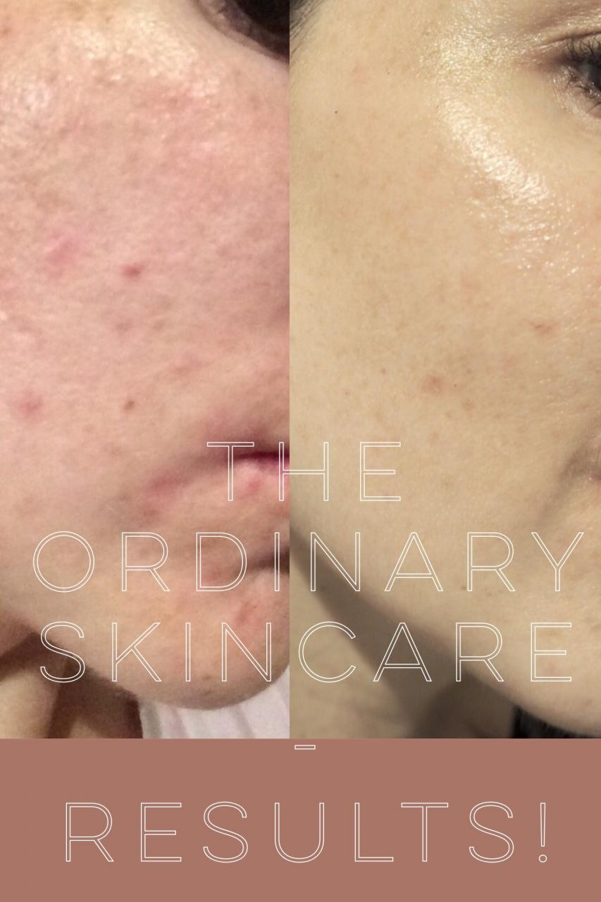 The Ordinary Skincare|Results | NiaPattenLooks