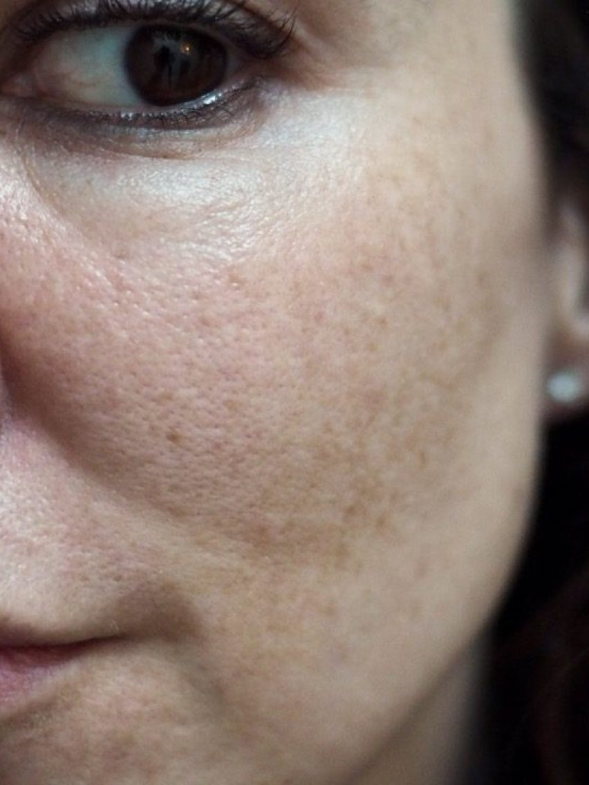 Skincare for Acne/Aging/Pigmentation- Ordinary Confusion- side face with visible pores