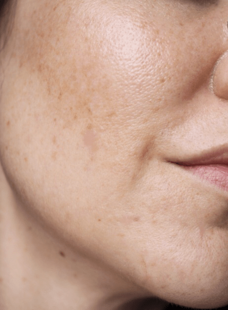 Skincare for Acne/Aging/Pigmentation- The Current Skin Situation- side face clear skin