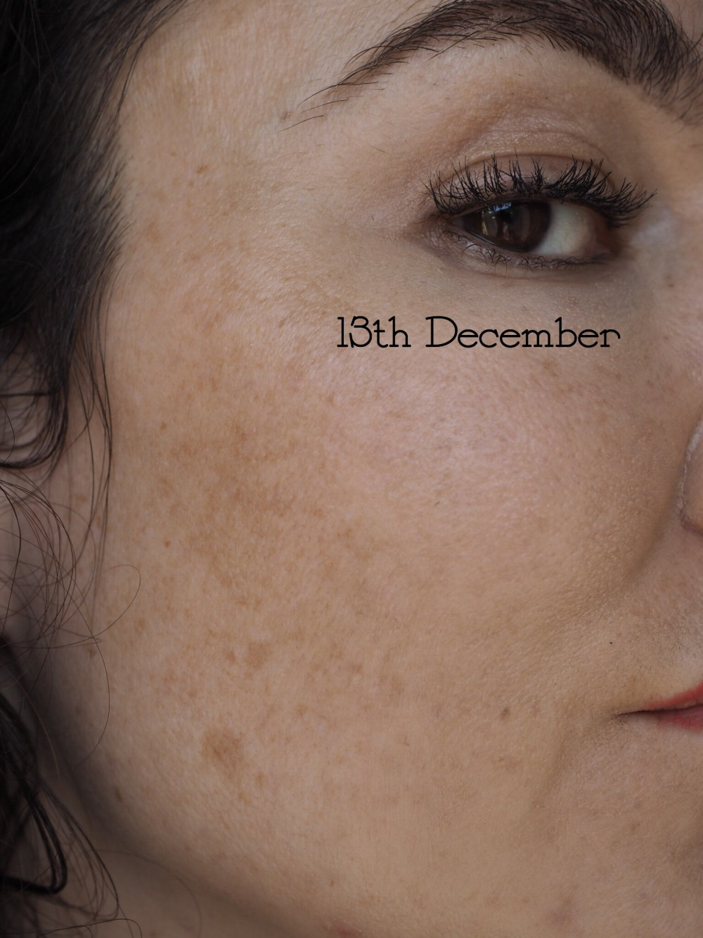 Re Pigment by NIOD- The After 3 Months Picture- freckles have faded but definitely still present