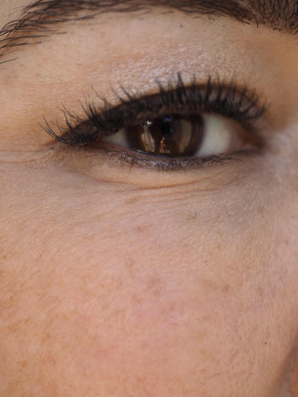 Yana Daily Collagen Shots by Image Skincare- Right Eye Before