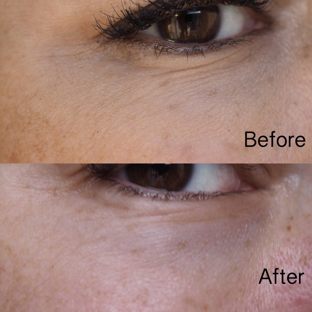 Yana Daily Collagen Shots by Image Skincare- Right Eye Before and After