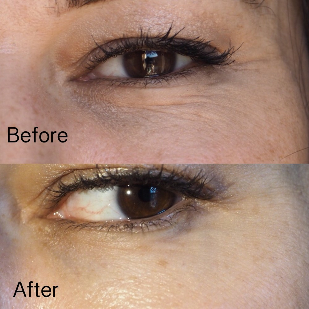 Yana Daily Collagen Shots by Image Skincare- Left Eye Before and After