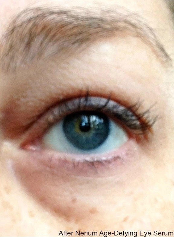 NERIUM™ Age-Defying Eye Serum-eye after treatment