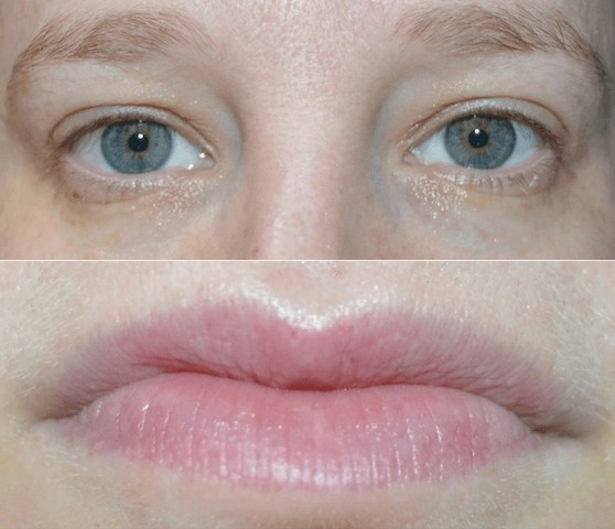 Burt's Bees Eye and Lip Sheet Mask Results