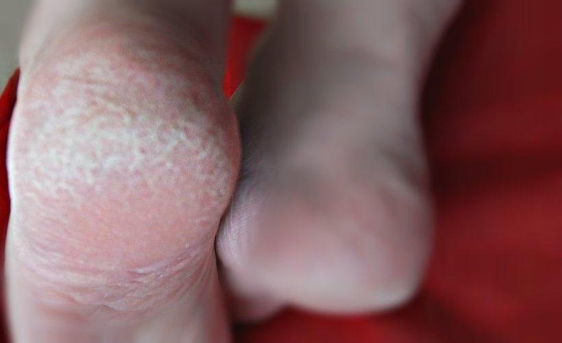 harde huidverwijderaar kruidvat