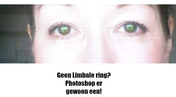 limbale_ring_ Babs