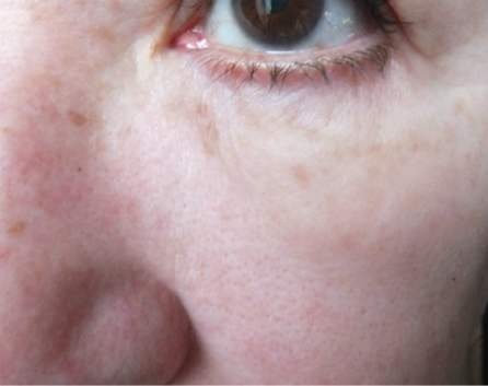 instantly ageless no filter