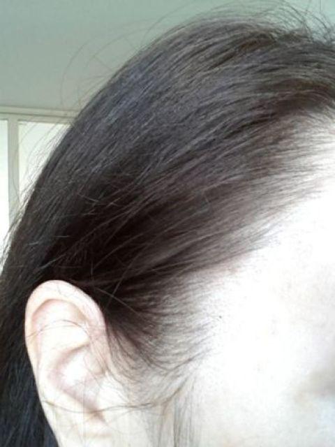 Grijze haren verdwenen!