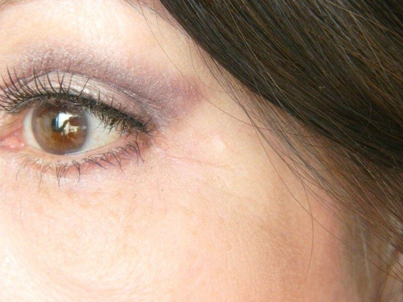 Mijn ooglidcorrectie- En hoe ziet het na 3 jaar eruit? 17 ooglidcorrectie Mijn ooglidcorrectie- En hoe ziet het na 3 jaar eruit?