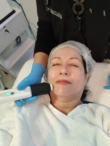 Mijn behandeling met de OxyGeneo & TriPollar- Anti-Aging, Huidverstrakking en minder Pigmentatie! 10 oxygeneo Mijn behandeling met de OxyGeneo & TriPollar- Anti-Aging, Huidverstrakking en minder Pigmentatie!