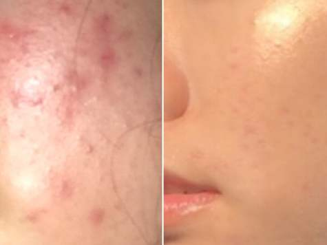 Pimple, Acne Skincare Routine In Summer Treatment