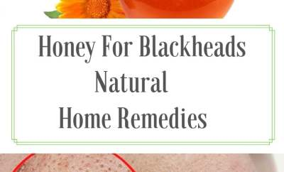 how to remove blackheads,blackheads,how to get rid of blackheads,remove blackheads at home,blackheads removal,how to remove whiteheads,how to get clear skin,how to remove blackheads at home,home remedies to remove blackheads and whiteheads,how to get rid of whiteheads,get rid of blackheads,how to remove a blackhead