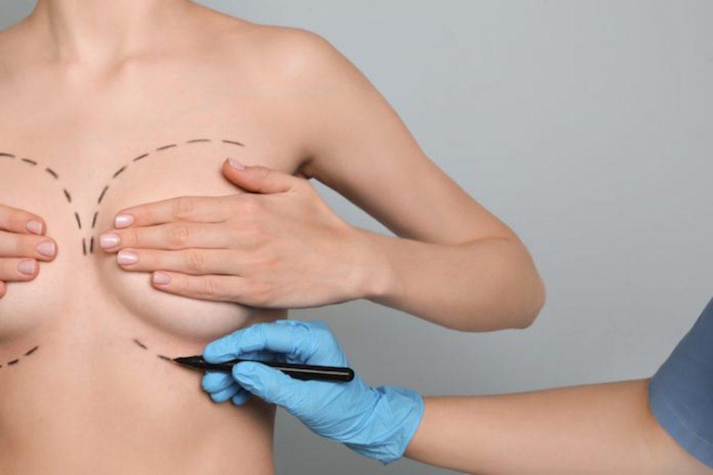 mastoplastica additiva chirurgia estetica