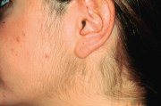 electrolysis - questions answered