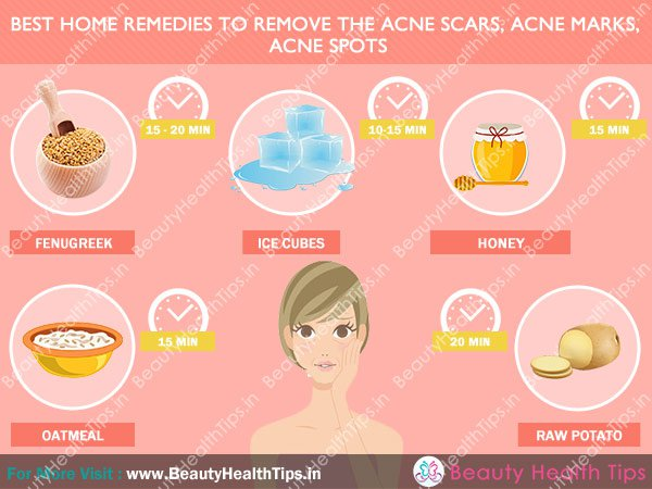 Natural Way To Remove Pimple Marks