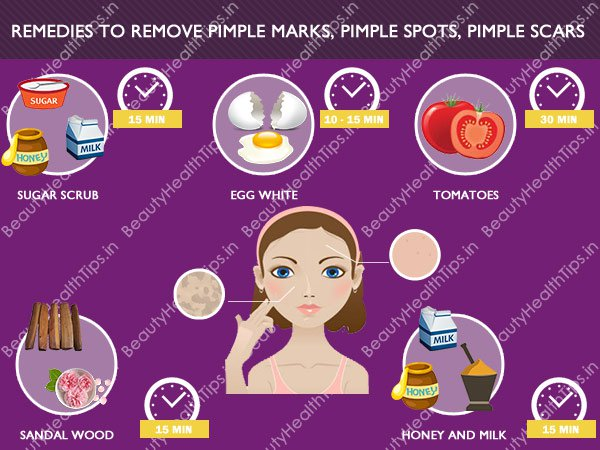 Image Result For Most Effective Ways To Remove Acne Scars Pimple Marks
