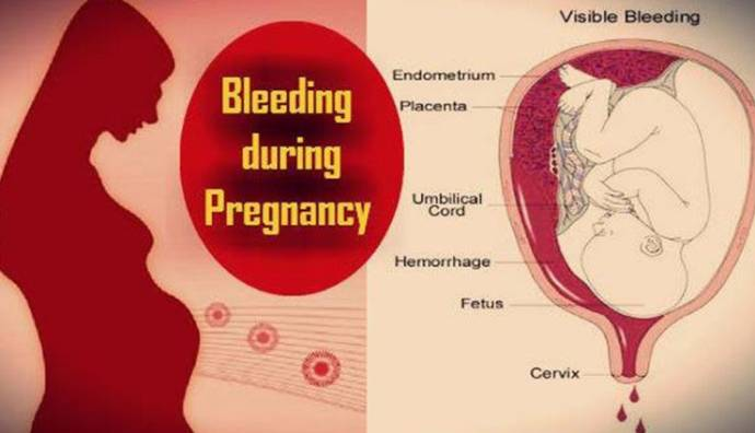 Bleeding during pregnancy What are the reasons