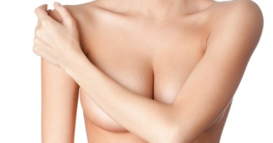 Remove the stretch marks from your chest naturally