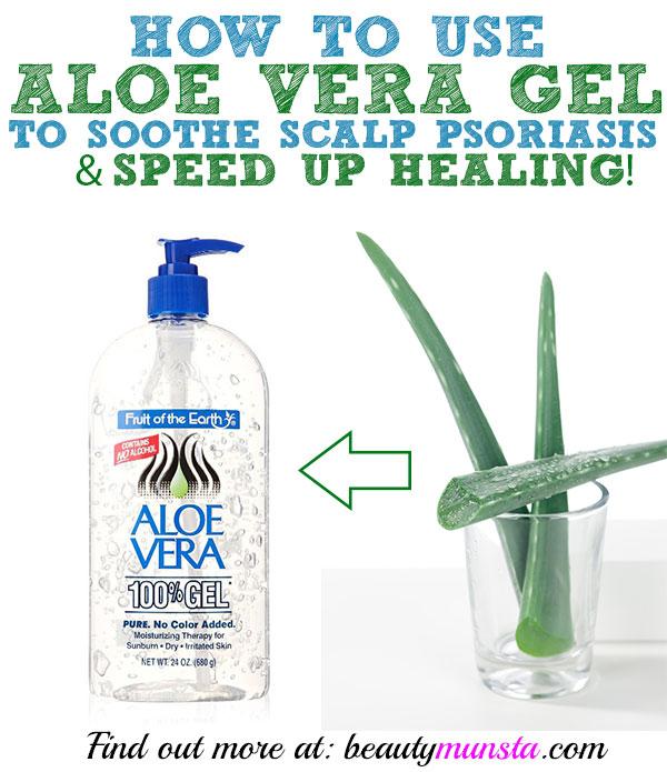 aloe vera psoriasis shampoo