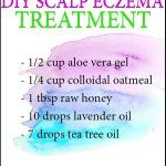 DIY Eczema Scalp Treatment