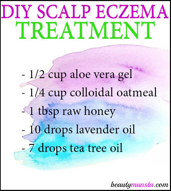 Got scalp eczema? Try this DIY eczema scalp treatment as a natural way to heal your scalp.
