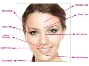 Facial expression lines
