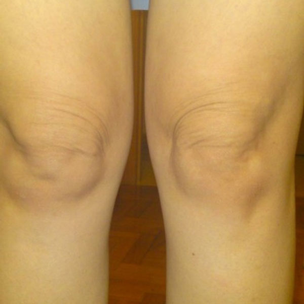 Firming skin over knees