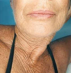 antioxidant could offer miracle cure for wrinkles