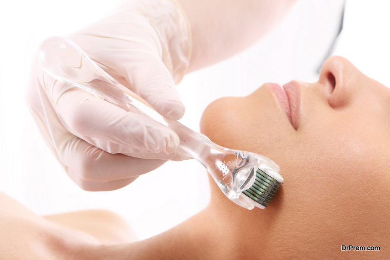 What is Microneedling