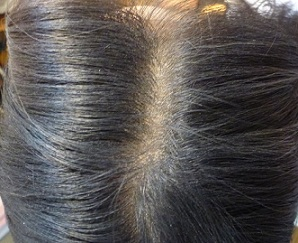 Non-Oily hair after dry shampoo application