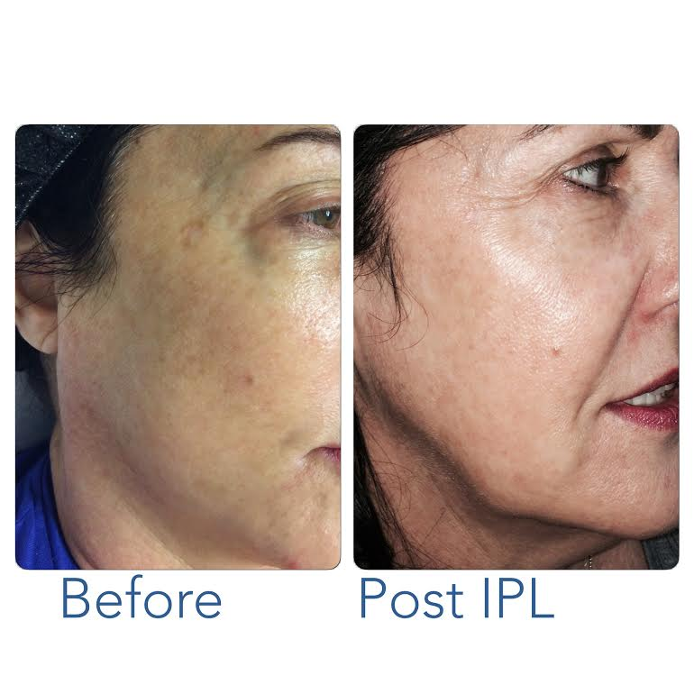 Before and After IPL 4