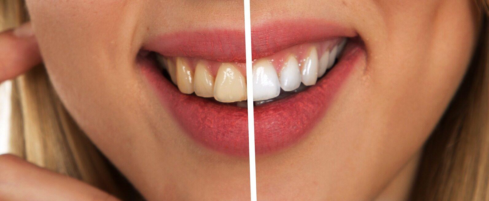 Izbjeljivanje zubi kod kuće – 6 načina kako prirodno izbijeliti zube