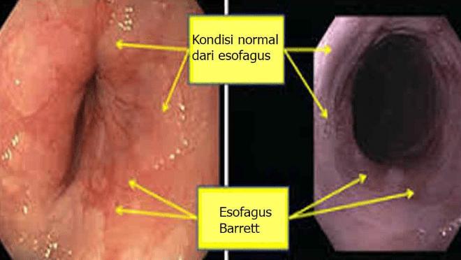 bahaya asam lambung