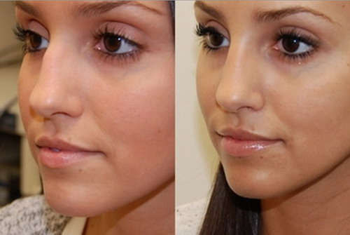 Nose Reshaping Without Surgery