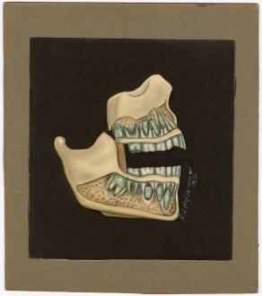 Human jawbone, 1925 by AJ Hofsommer, VC050037, BBML