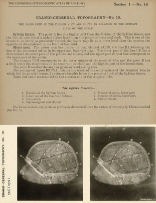 """Stereograph from the """"Stereoscopic Studies of Anatomy"""""""