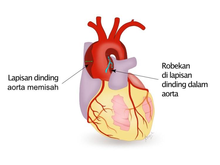 Mekanisme terjadinya diseksi aorta atau aortic dissection.