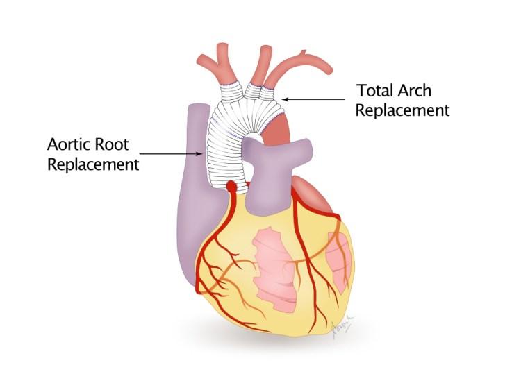 Aortic root replacement dan total arch replacement surgery untuk perbaikan diseksi aorta