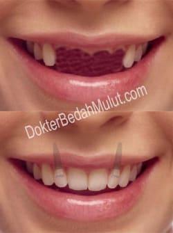 Biaya Pasang Gigi Palsu : biaya, pasang, palsu, Palsu, Permanen, Dokter, Bedah, Mulut