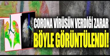 Koronavirüsün akciğere verdiği zarar görüntülendi!